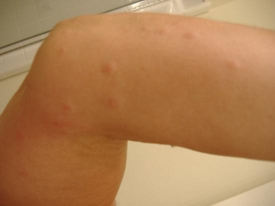 scabies in hotels